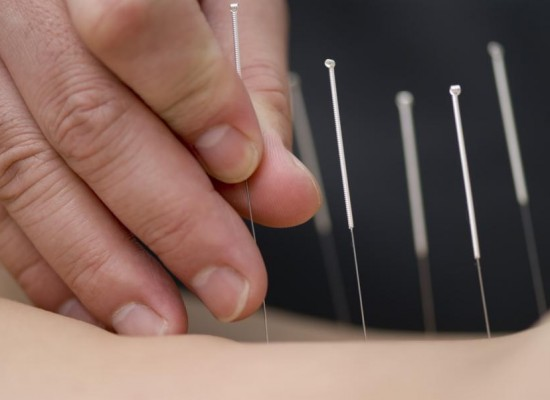 How Chinese Acupuncture is Helping American Women